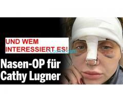 Nasen OP für Kathy Lugner und wem interessiert es!